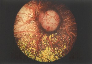 Collie Eye Anomaly - Australian Shepherd Health & Genetics Institute